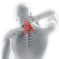 Neck and Shoulder Stiffness